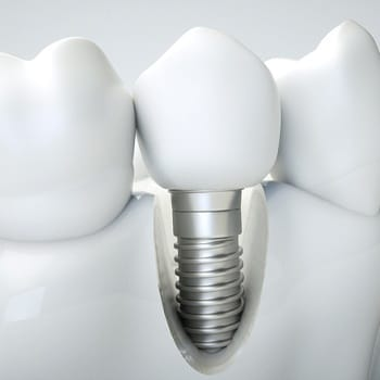 Close up dental implant in jawbone
