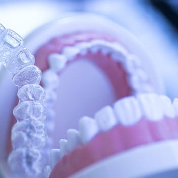 Invisalign and teeth