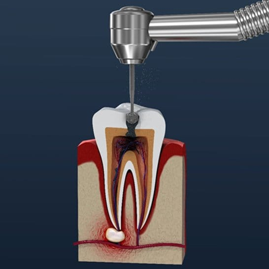 The inner layers of a tooth and a drill entering the crown