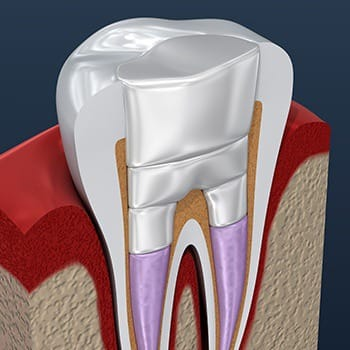 representation of a repaired root canal